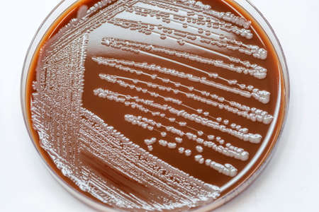 Bacterial colonies culture on Chocolate agar. (Gram positive cocci);Staphylococcus spp; Staphylococcus aureus.