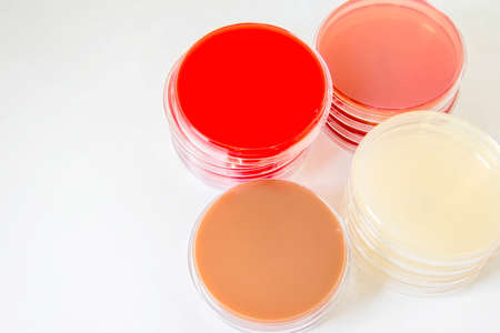 Blood agar(BA), Chocolate agar(CA), MacConkey agar(MAC), MU agar ; Selective Media for Bacteria growth.
