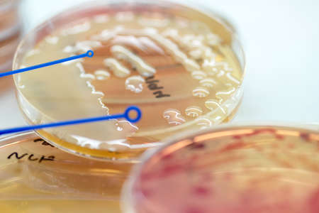 Bacterial culture growth on MacConkey agar (Klebsiella pneumoniae)contains small light grains. Focus on all agar surface.
