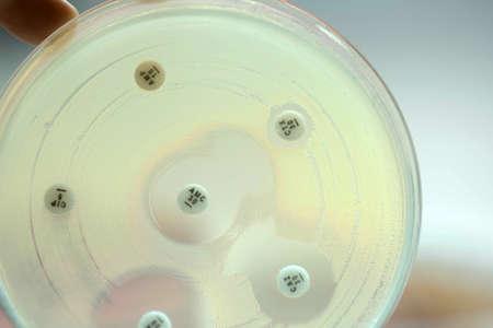 Keyhole test ESBLs positive by diffusion method test for gram negative bacilli;  focus on all agar surface.