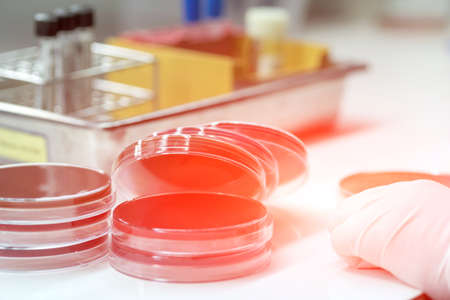 Media plate on table of medical technicians working on bacterial culture and drug resistance of pathogens in laboratory.