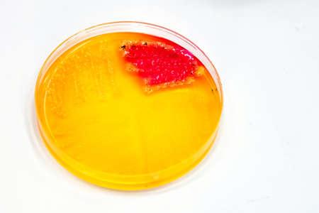 Bacterial colonies culture growth on selective agar media(SS agar) contains small light grains(Focus on all agar surface). Stok Fotoğraf