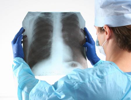 csi: Doctor in blue uniform holding X-rays.