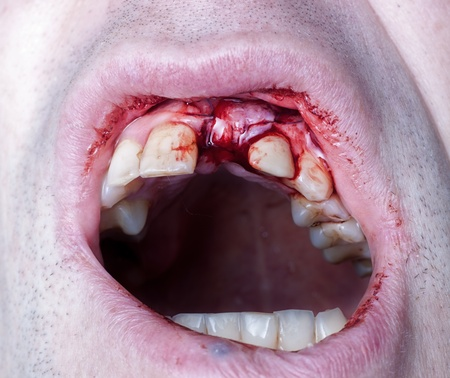 tooth extraction: suturing, after surgery in the oral cavity