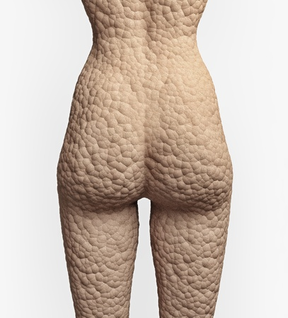 cellulite texture on the human skin  illustrationconcept  Stock Photo