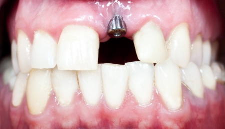 implant: A macro shot of dental implant in the oral cavity  human mouth