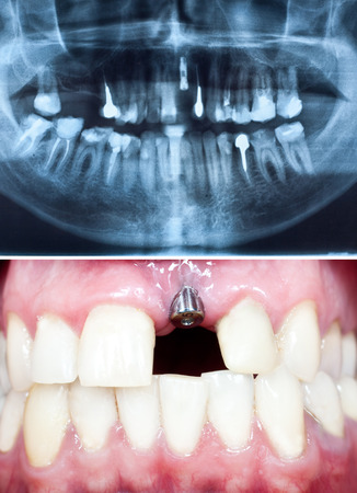 A macro shot of dental implant in the oral cavity and its Panoramic dental X-Ray  Stock Photo