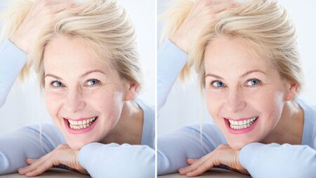 Teeth of middle aged woman before and after whitening. Stock Photo