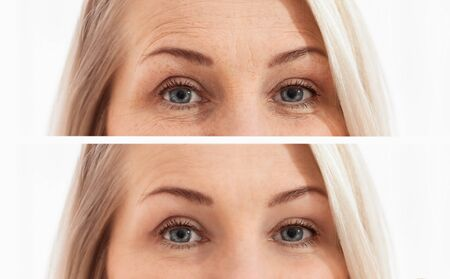 Middle age close up woman face and eyes before after cosmetic procedures. Skin care for wrinkled face. Before-after anti-aging facelift treatment. Facial skincare and contouring. Menopause