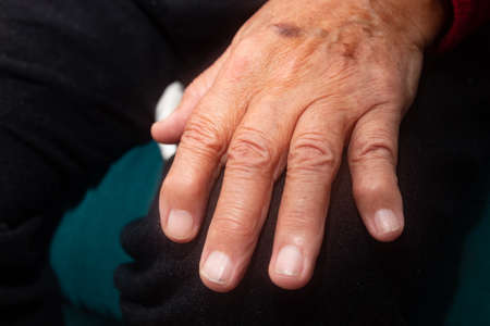 Hand of elderly person with osteoarthritis