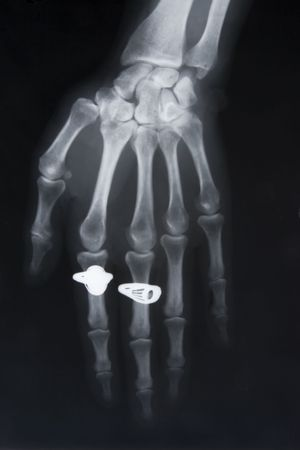 radiogram: front view of x-ray image of hand with two rings Stock Photo