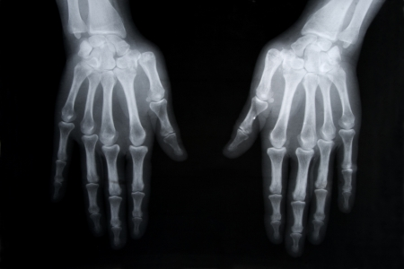 x ray image: black and white photo of x-ray picture of human hands Stock Photo