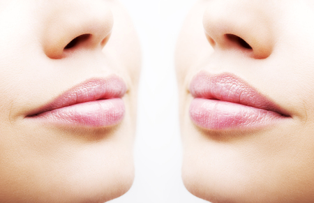 Before and after lip filler injections. Close up over white background Standard-Bild
