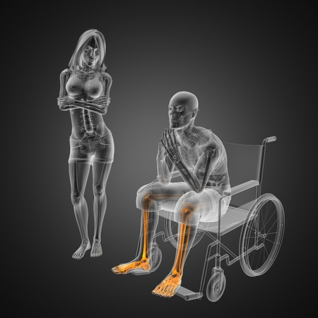 Man in wheelchair made in 3D photo