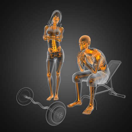 osteoporosis: Hombre en silla de ruedas hecha en 3D