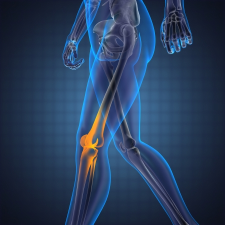 arthritis knee: human radiography scan made in 3D