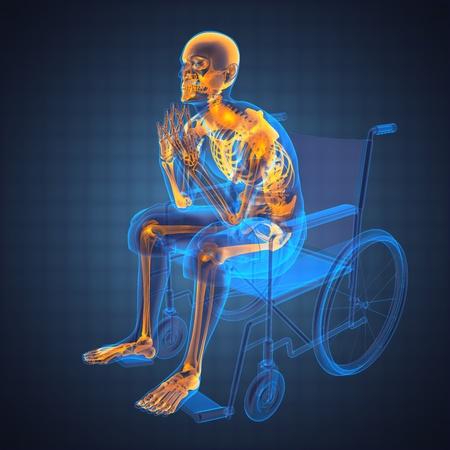 roentgen: Man in wheelchair made in 3D
