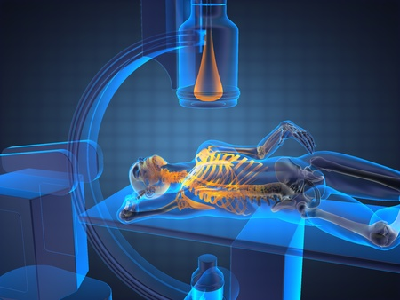 x-ray-onderzoek dat in 3D graphics