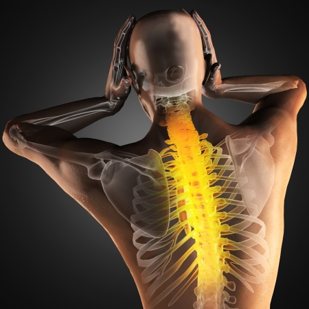spine surgery: human radiography scan made in 3D