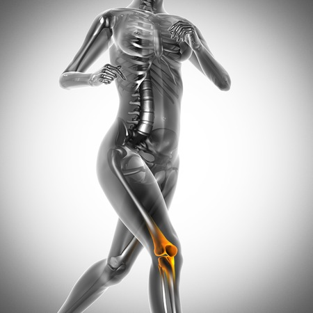 running woman radiography scan image photo