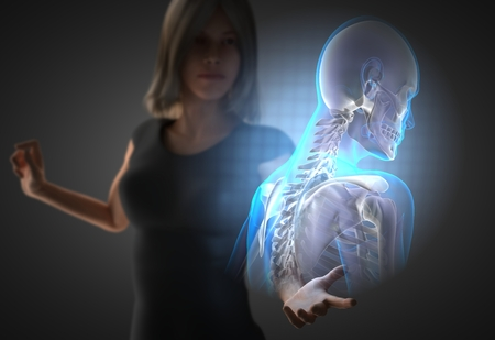 osteoporosis: woman and hologram with bones radiography Stock Photo