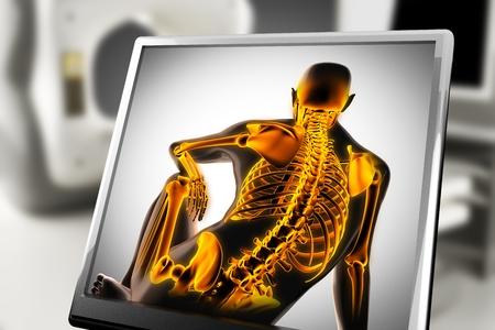 roentgen: human bones radiography scan. x-ray  image
