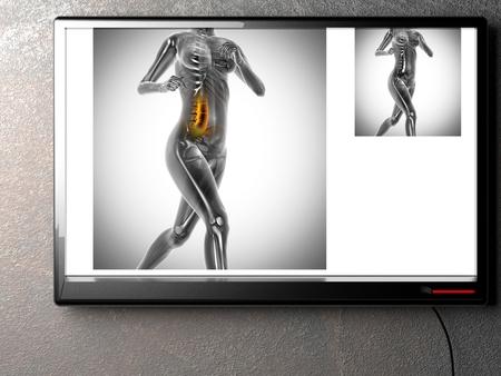 radiography: human bones radiography scan. x-ray  image