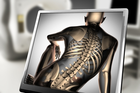 espina dorsal: huesos humanos escaneo radiografía. imagen de rayos x Foto de archivo