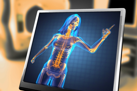 radiography: cute woman radiography