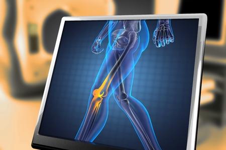 radiography: human radiography scan