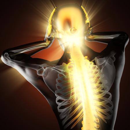 dolor de cabeza: humano con dolor de cabeza de exploraci�n radiograf�a Foto de archivo
