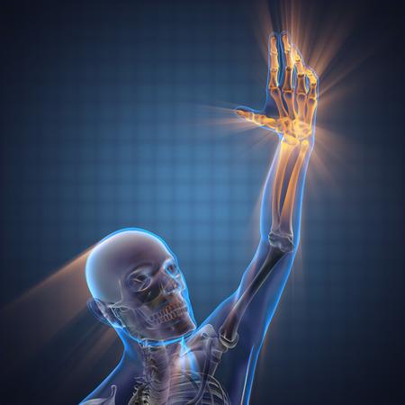 radiography: human hand bones radiography