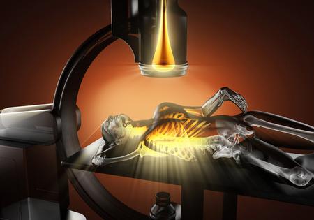 human bones: examen de rayos X de los huesos humanos