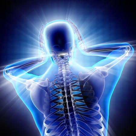 headache: human with headache radiography scan