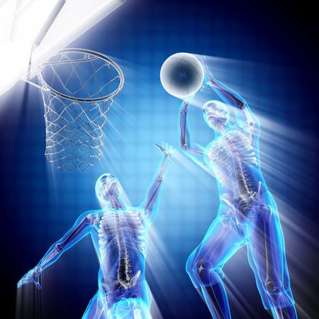radiography: basketball player bones radiography