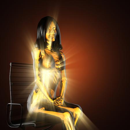 radiography: woman bones radiography scan image