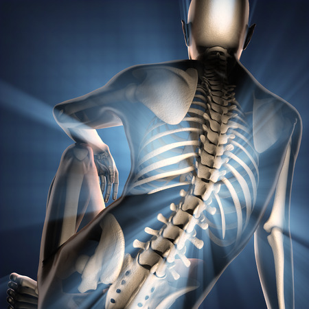 spine surgery: human bones radiography scan image