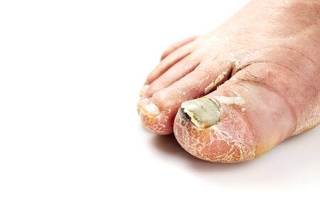 Toenail fungus isolated on white. Sore toenail, nail fungus close up photo.