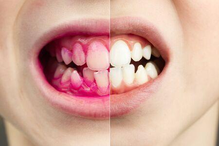 Plakette, die Tabletten in Arbeit offenbart. Vorher und Nachher - Wirkung. Nahaufnahme Foto des Jungen Zahn. Zahnbelag-Pillenkonzept. Standard-Bild