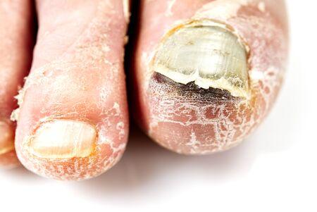 Kranker Nagel am Fuß. Zehennagelpilz isoliert auf weiss. Wunder Zehennagel, Nagelpilz Nahaufnahme Foto