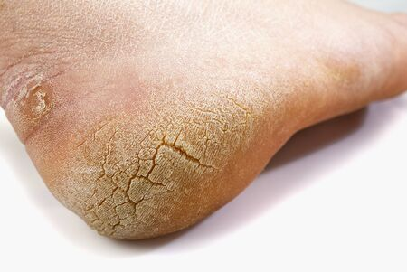 Cracked toe. Macro. White background. Pain denoted by the red color