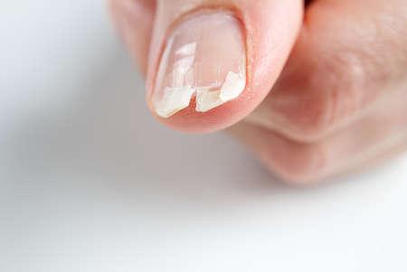broken nail on a female hand. close-up shoot of broken nail