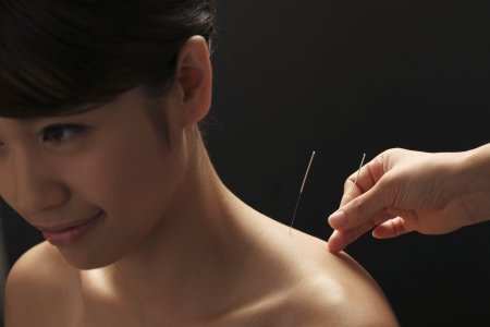 doctor putting acupuncture needles on womans shoulder,close-up photo