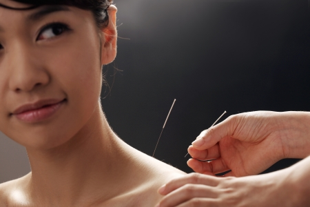 doctor putting acupuncture needles on womans shoulder,close-up