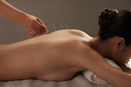 Doctor putting acupuncture needles on womans shoulder,close-up Stock Photo