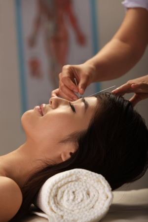Doctor putting acupuncture needles on womans head,close-up photo