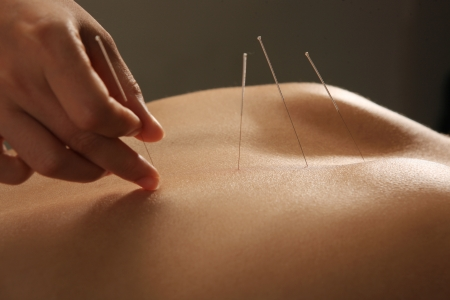 Doctor putting acupuncture needles on woman's shoulder,close-up photo