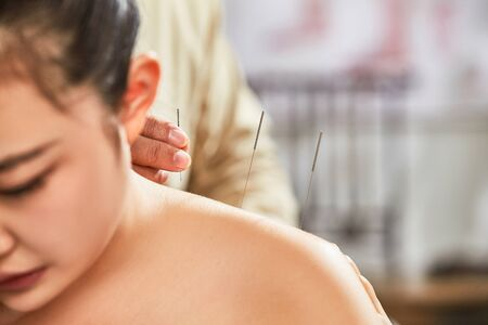Young women shoulder acupuncture therapy