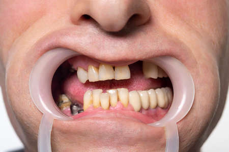 Closeup of man's teeth with retractor for mouth. Patient at the dentist. Tooth disease. Severe rot, carious, tooth loss. Before the treatments Stock Photo