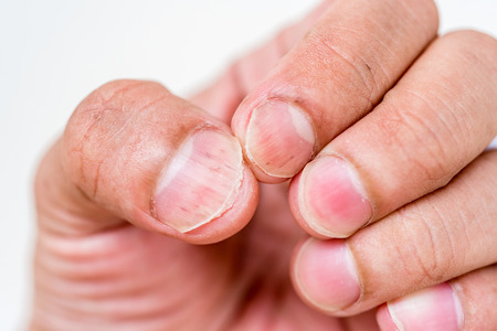 closeup nails having fungus